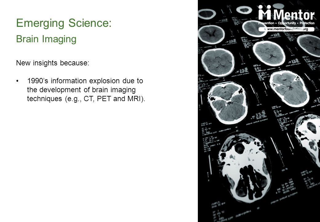 Emerging Science: Brain Imaging New insights because: 1990s information explosion due to the development of brain imaging techniques (e.g., CT, PET and MRI).