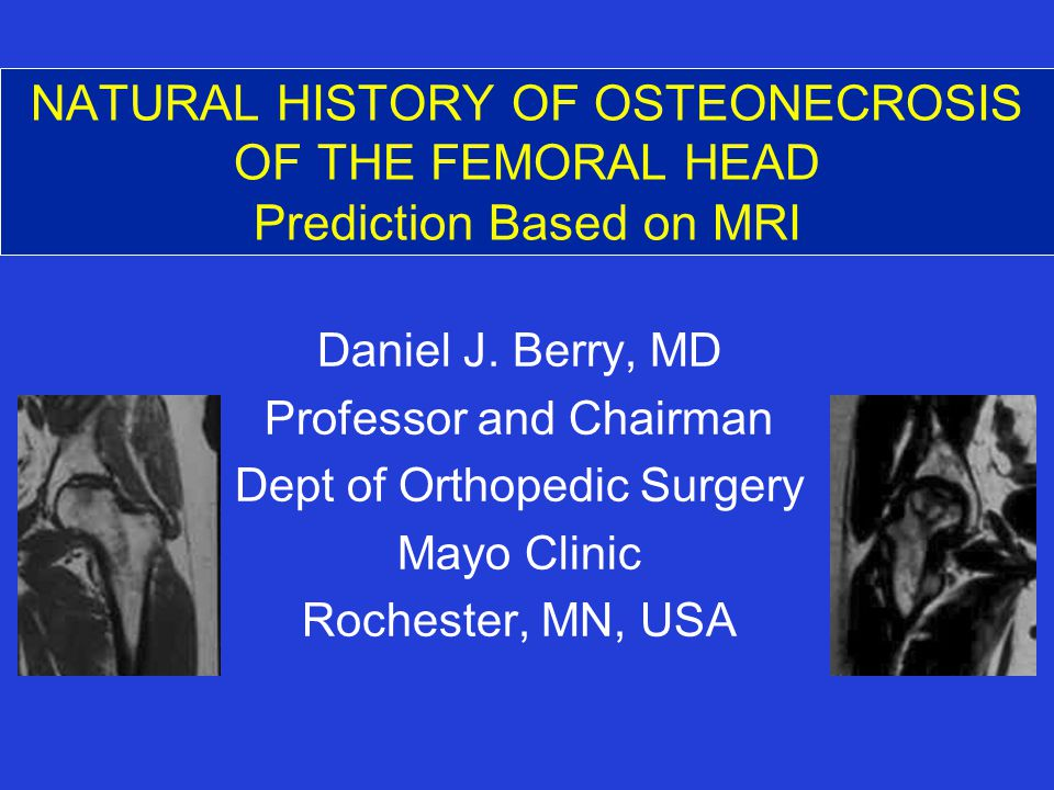 NATURAL HISTORY OF OSTEONECROSIS OF THE FEMORAL HEAD Prediction Based on MRI Daniel J.