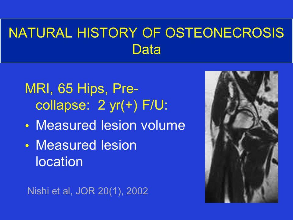 NATURAL HISTORY OF OSTEONECROSIS Data MRI, 65 Hips, Pre- collapse: 2 yr(+) F/U: Measured lesion volume Measured lesion location Nishi et al, JOR 20(1), 2002
