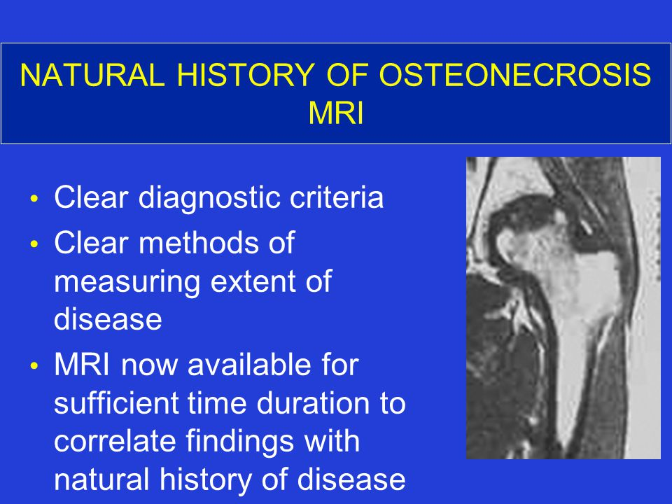 NATURAL HISTORY OF OSTEONECROSIS MRI Clear diagnostic criteria Clear methods of measuring extent of disease MRI now available for sufficient time duration to correlate findings with natural history of disease