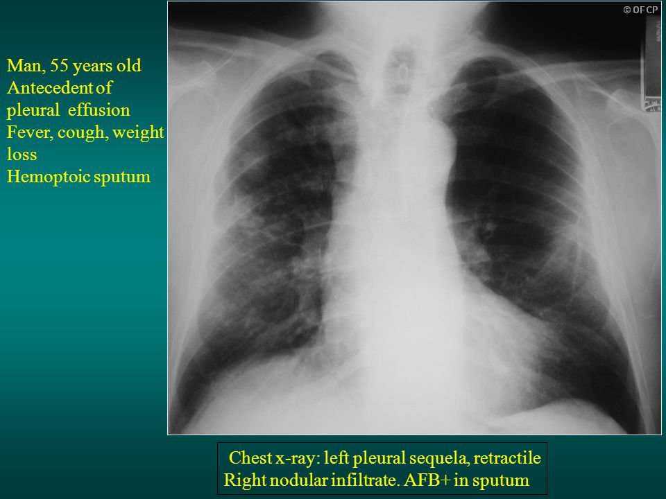 Man, 55 years old Antecedent of pleural effusion Fever, cough, weight loss Hemoptoic sputum Chest x-ray: left pleural sequela, retractile Right nodular infiltrate.