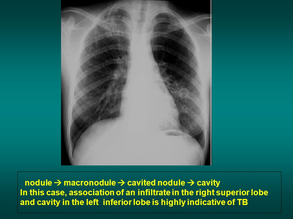 nodule macronodule cavited nodule cavity In this case, association of an infiltrate in the right superior lobe and cavity in the left inferior lobe is highly indicative of TB