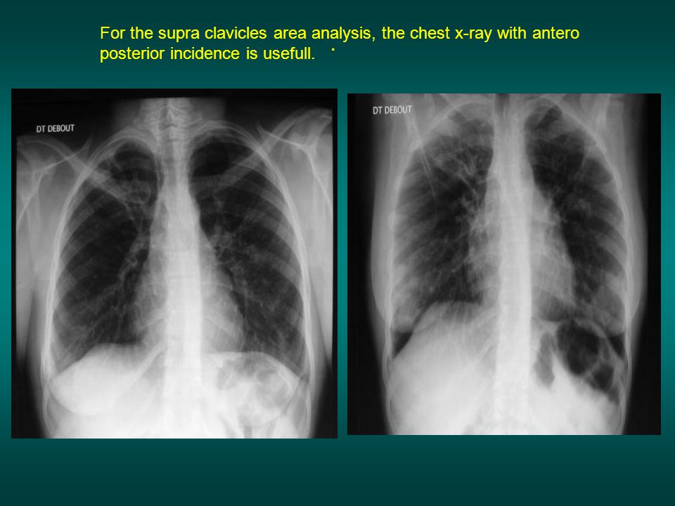 . For the supra clavicles area analysis, the chest x-ray with antero posterior incidence is usefull.