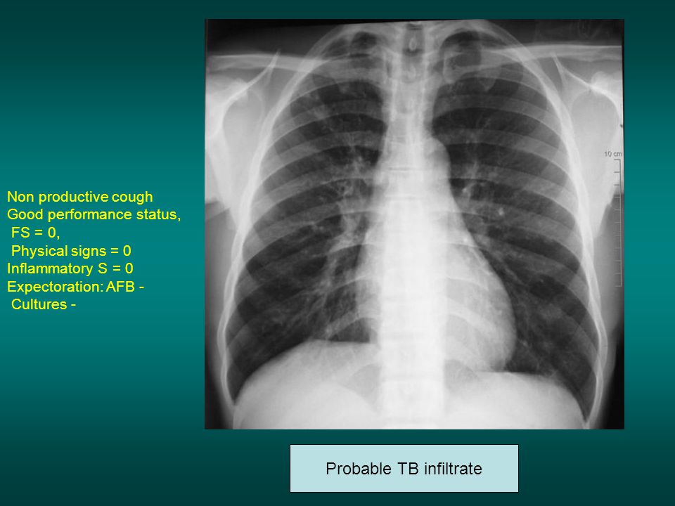 Non productive cough Good performance status, FS = 0, Physical signs = 0 Inflammatory S = 0 Expectoration: AFB - Cultures - Probable TB infiltrate