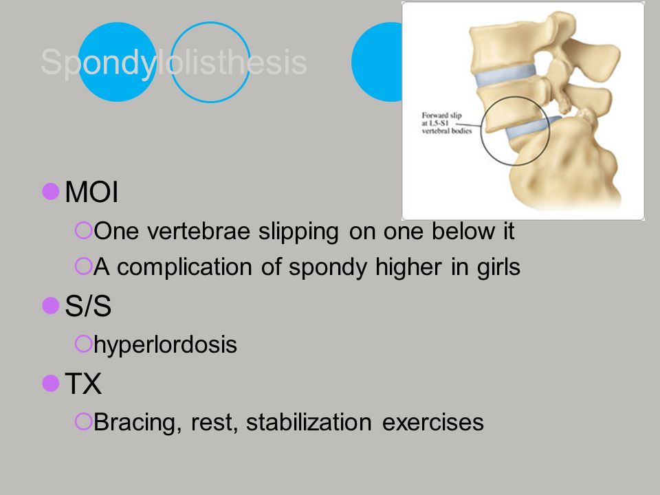 Spondylolisthesis MOI One vertebrae slipping on one below it A complication of spondy higher in girls S/S hyperlordosis TX Bracing, rest, stabilizatio