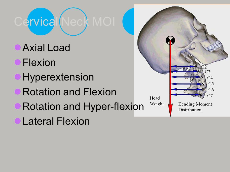 Cervical Neck MOI Axial Load Flexion Hyperextension Rotation and Flexion Rotation and Hyper-flexion Lateral Flexion