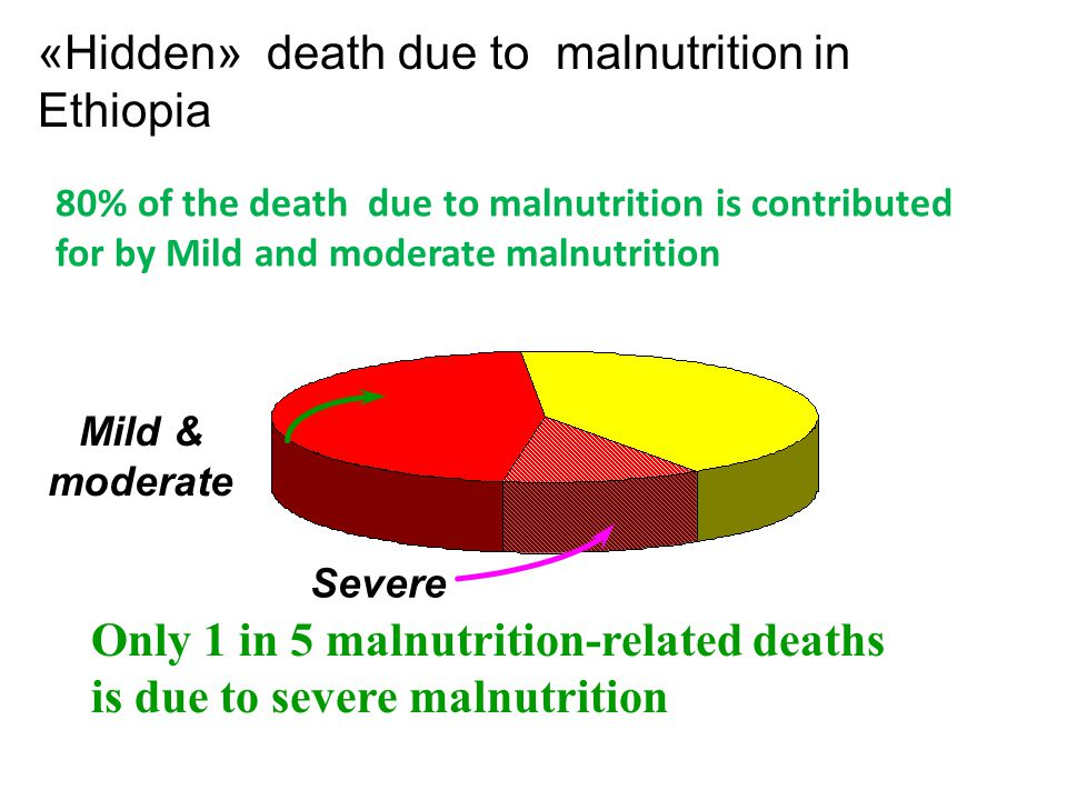 «Hidden» death due to malnutrition in Ethiopia Severe Mild & moderate Only 1 in 5 malnutrition-related deaths is due to severe malnutrition 80% of the
