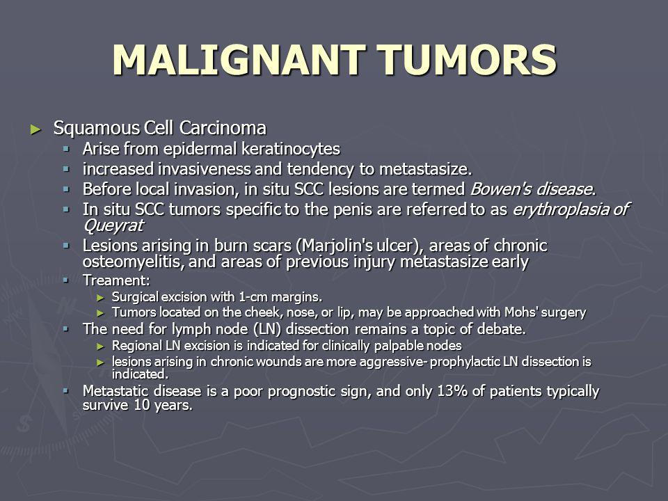 MALIGNANT TUMORS Squamous Cell Carcinoma Squamous Cell Carcinoma Arise from epidermal keratinocytes Arise from epidermal keratinocytes increased invas