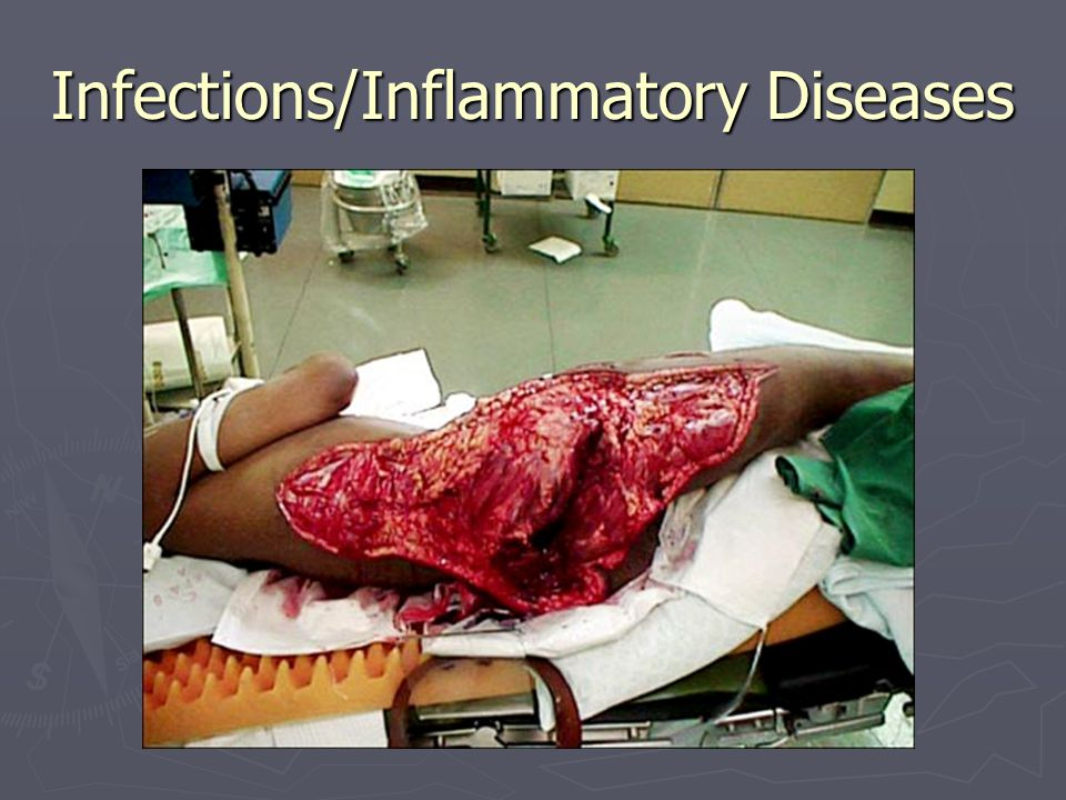 Infections/Inflammatory Diseases