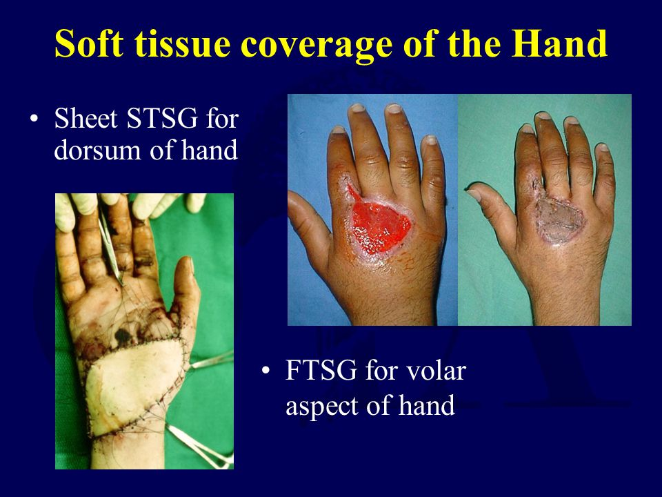 Soft tissue coverage of the Hand Sheet STSG for dorsum of hand FTSG for volar aspect of hand