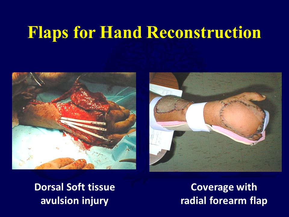 Dorsal Soft tissue avulsion injury Coverage with radial forearm flap Flaps for Hand Reconstruction