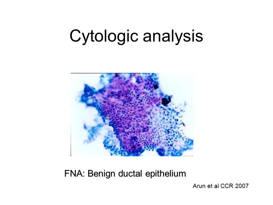 Cytologic analysis FNA: Benign ductal epithelium Arun et al CCR 2007