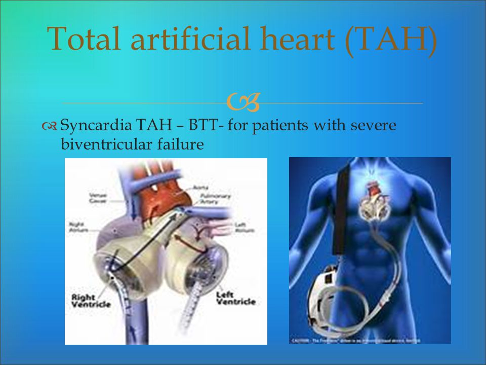 Syncardia TAH – BTT- for patients with severe biventricular failure Total artificial heart (TAH)