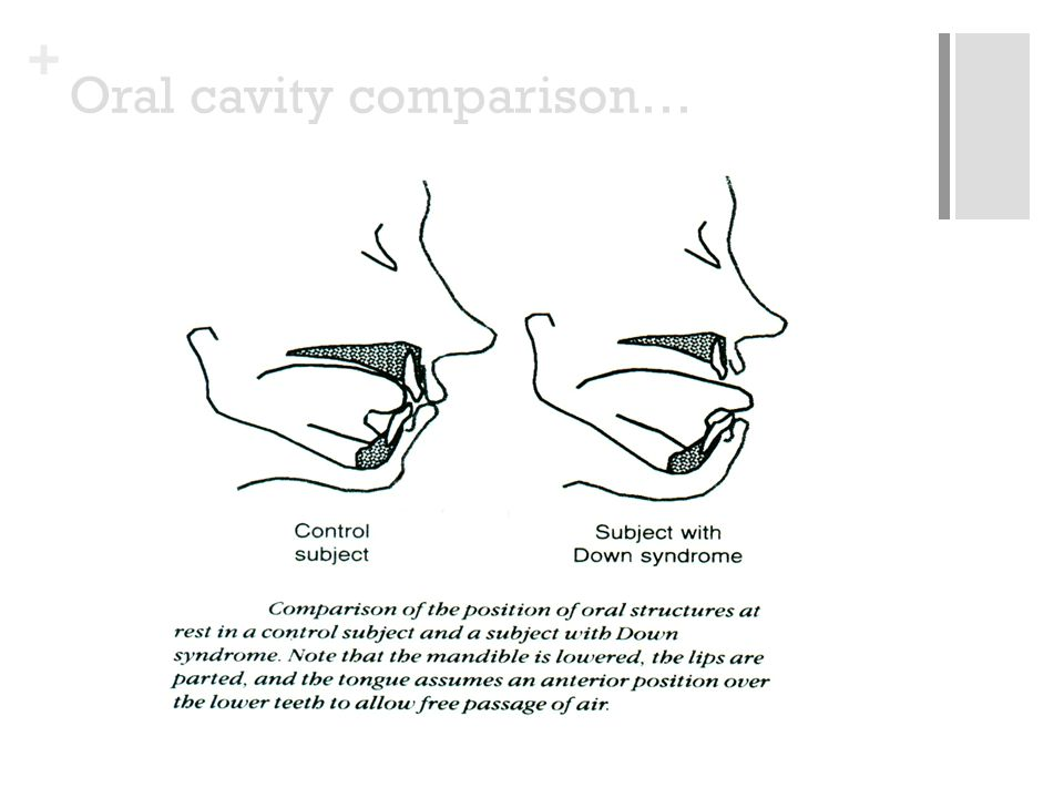 + Oral cavity comparison…