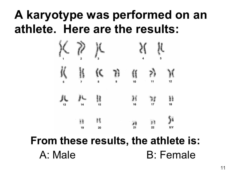 11 A karyotype was performed on an athlete. Here are the results: From these results, the athlete is: A: Male B: Female