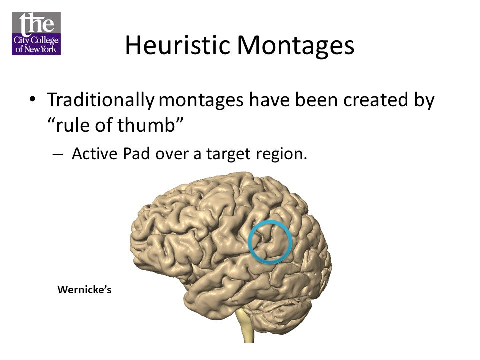 Heuristic Montages Traditionally montages have been created by rule of thumb – Active Pad over a target region.