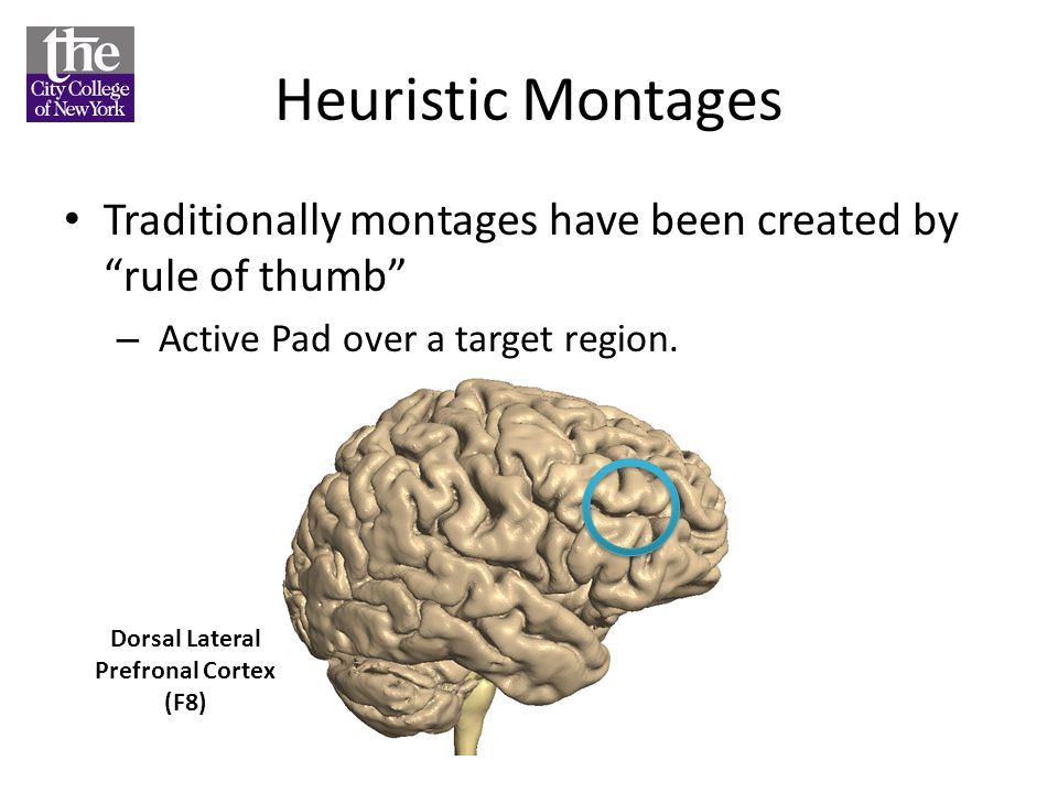 Heuristic Montages Traditionally montages have been created by rule of thumb – Active Pad over a target region. Dorsal Lateral Prefronal Cortex (F8)
