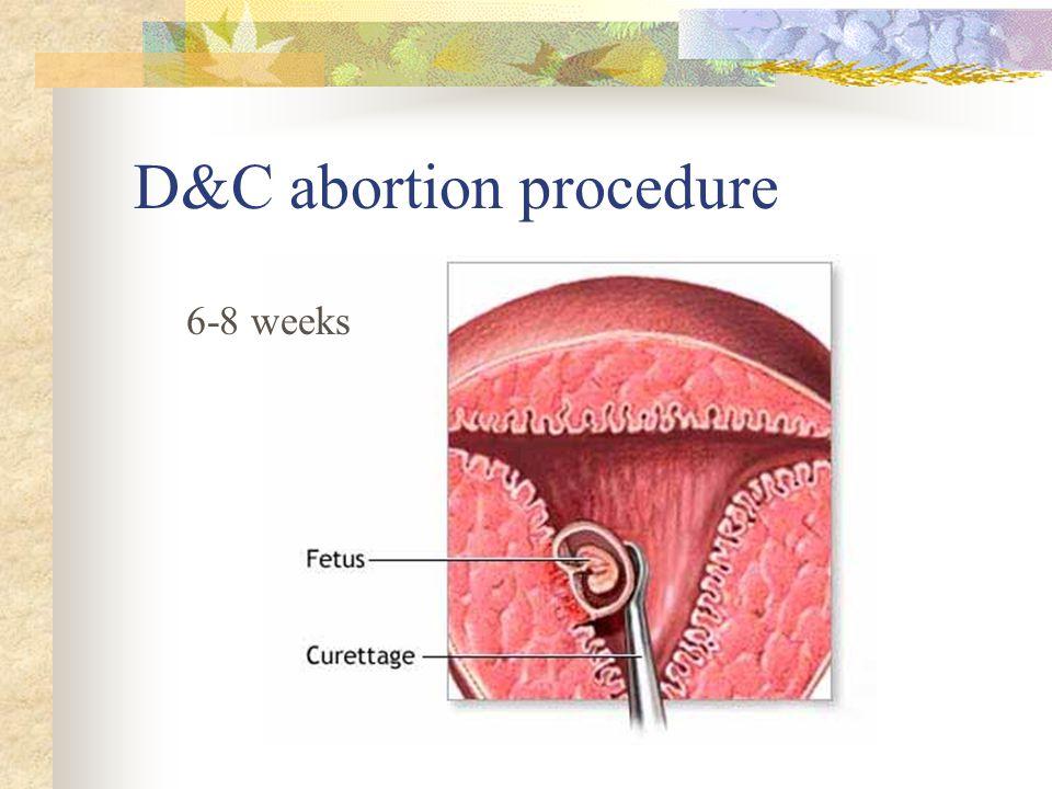 D&C abortion procedure 6-8 weeks