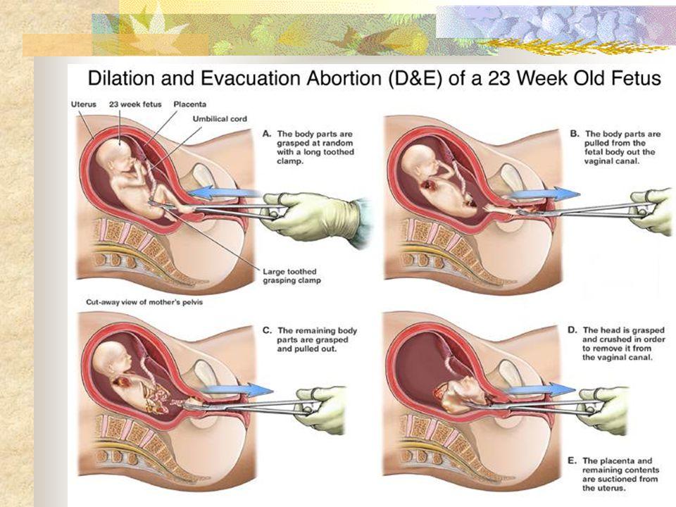 D&E abortion procedure
