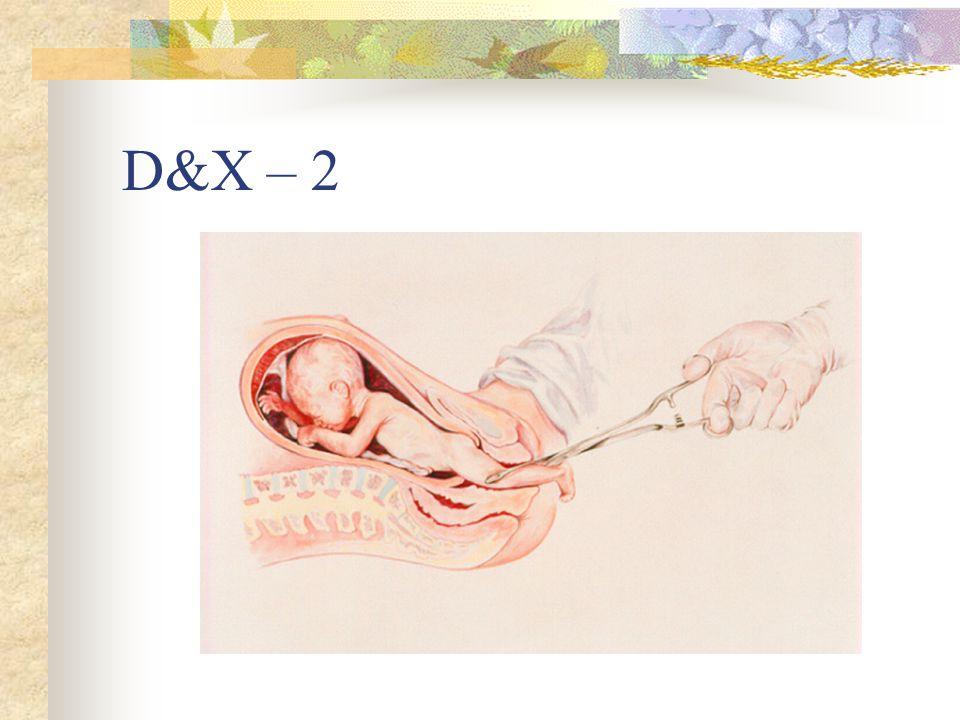 D&X – 2