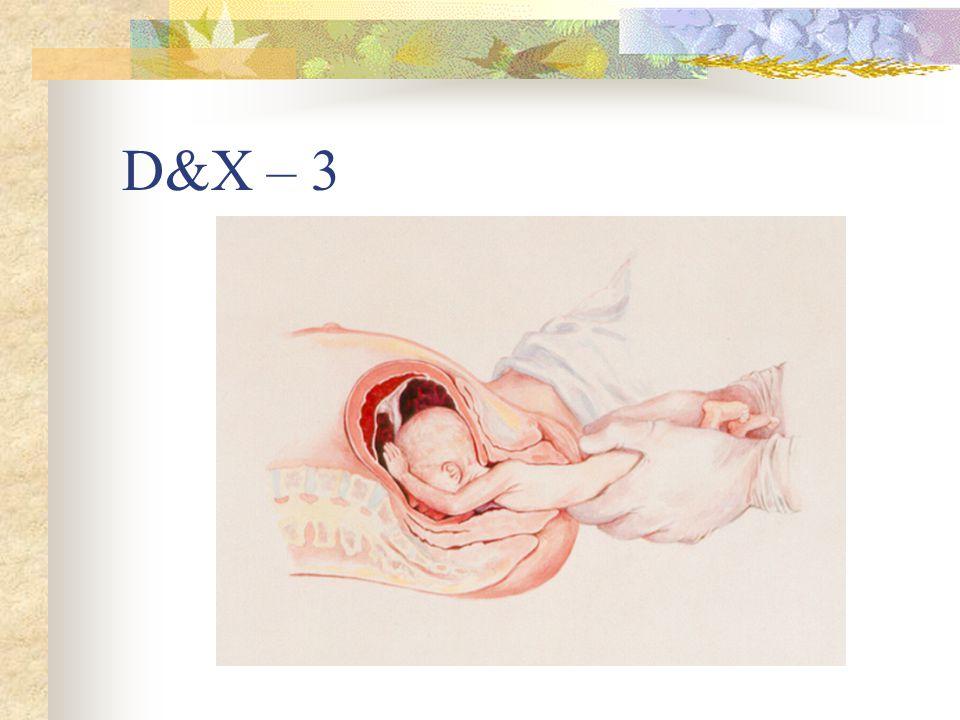 D&X – 3