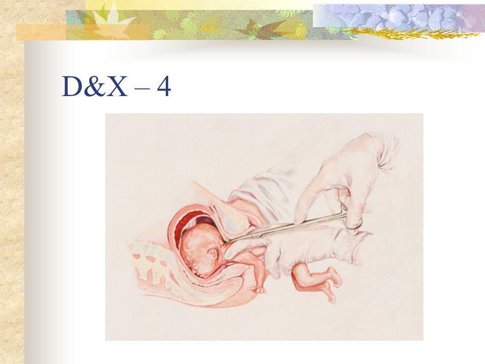 D&X – 4