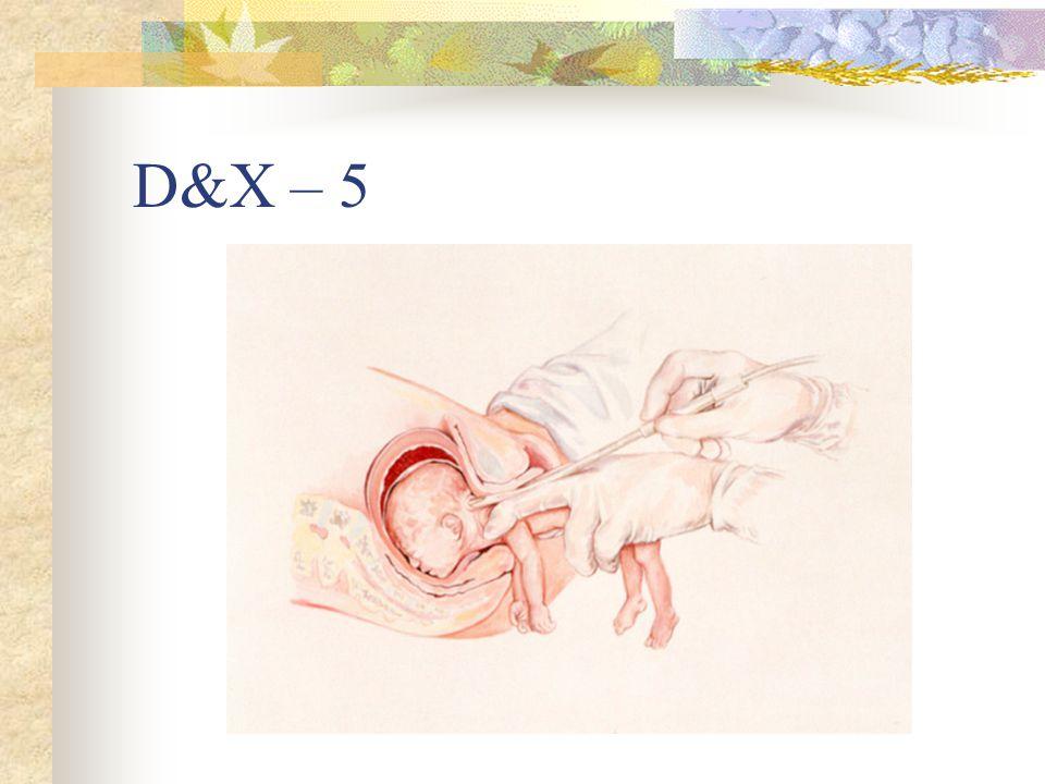 D&X – 5