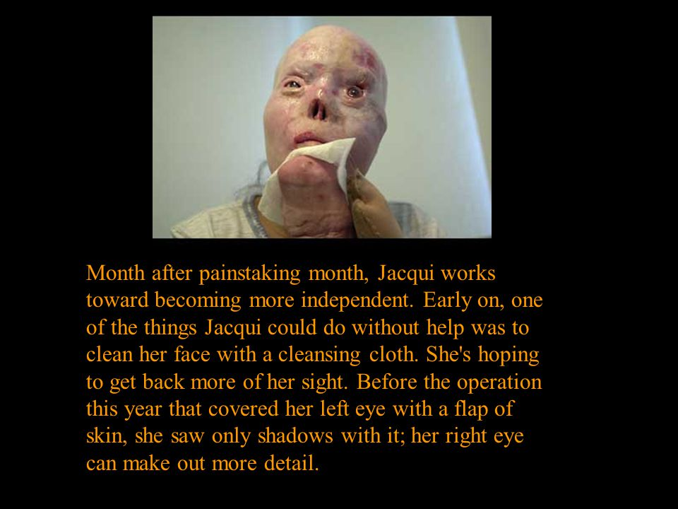 Month after painstaking month, Jacqui works toward becoming more independent. Early on, one of the things Jacqui could do without help was to clean he