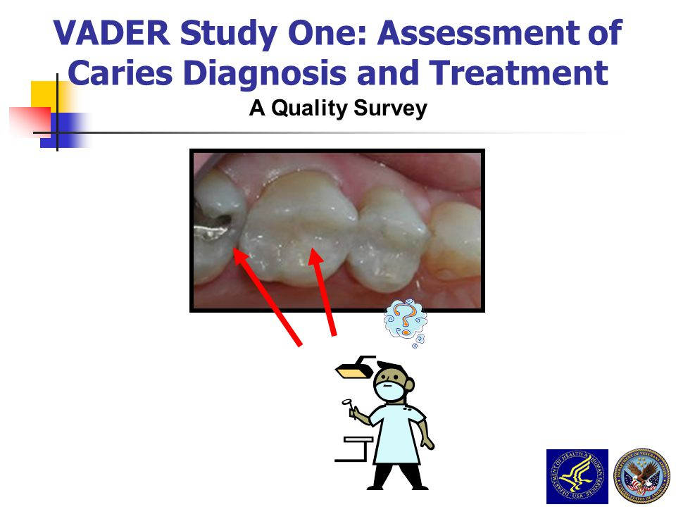 A Quality Survey VADER Study One: Assessment of Caries Diagnosis and Treatment