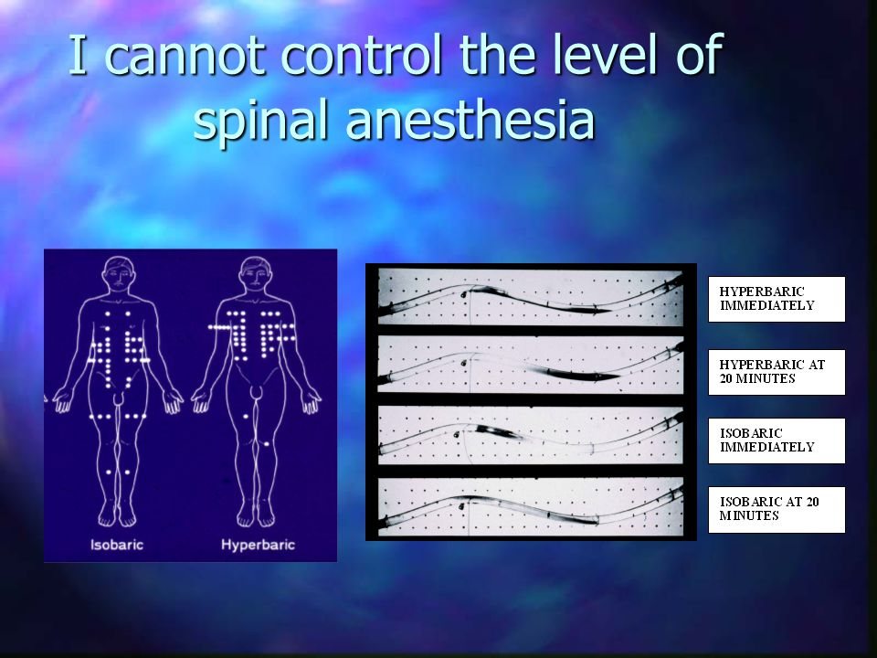 I cannot control the level of spinal anesthesia If you can, please share your method with me
