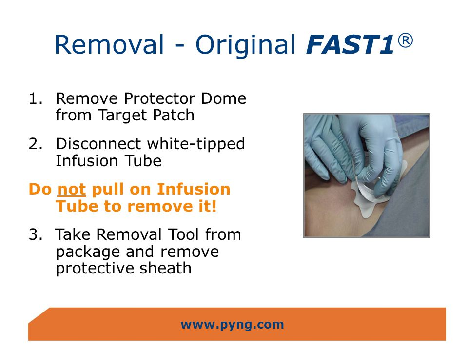 www.pyng.com Removal - Original FAST1 ® 1.Remove Protector Dome from Target Patch 2.Disconnect white-tipped Infusion Tube Do not pull on Infusion Tube