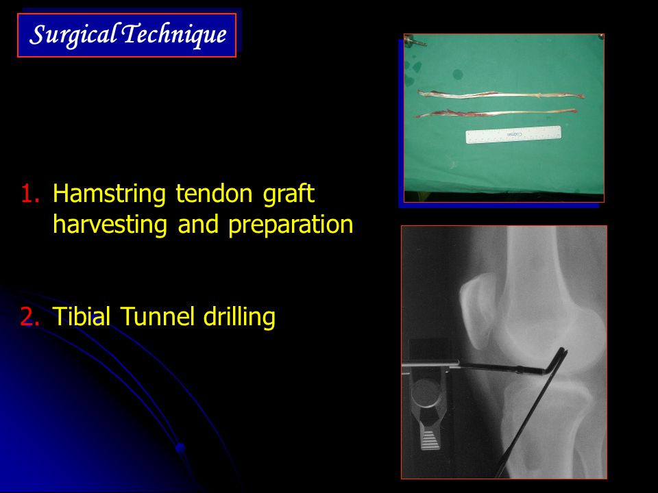Surgical Technique 1.Hamstring tendon graft harvesting and preparation 2.Tibial Tunnel drilling