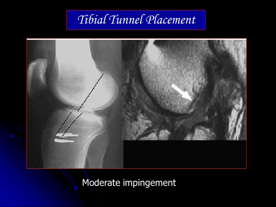 Tibial Tunnel Placement Moderate impingement