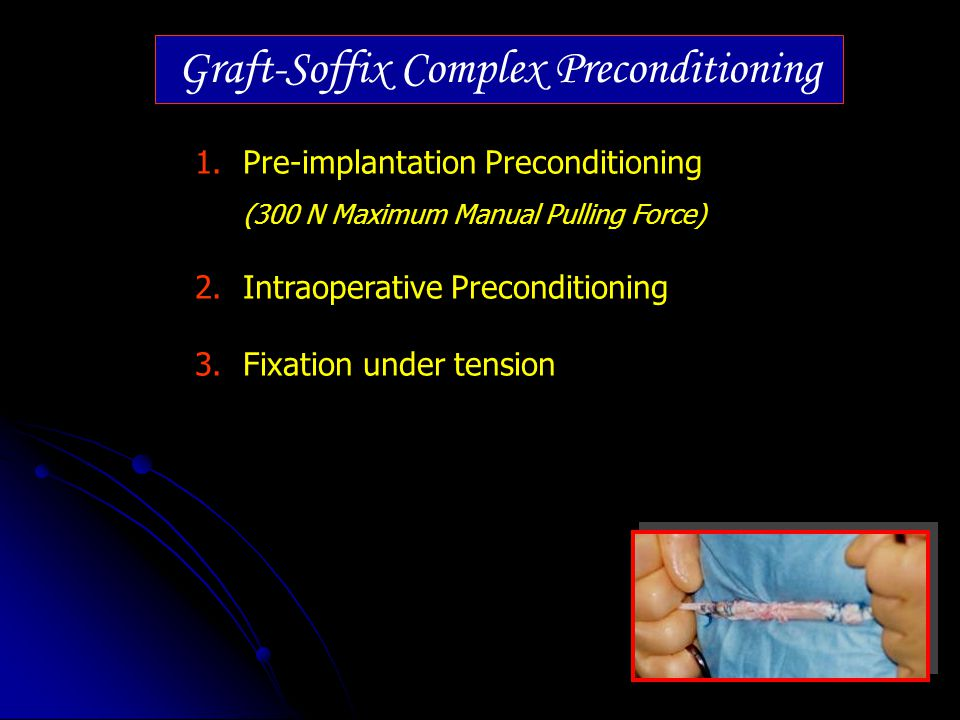 Graft-Soffix Complex Preconditioning 1.Pre-implantation Preconditioning (300 N Maximum Manual Pulling Force) 2.Intraoperative Preconditioning 3.Fixati