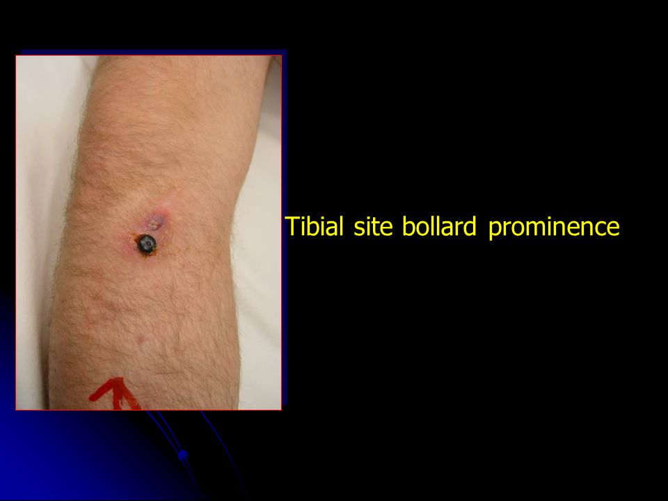Tibial site bollard prominence