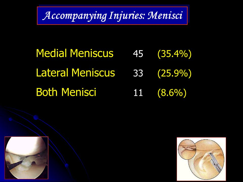 Accompanying Injuries: Menisci Medial Meniscus 45 (35.4%) Lateral Meniscus 33 (25.9%) Both Menisci 11 (8.6%)