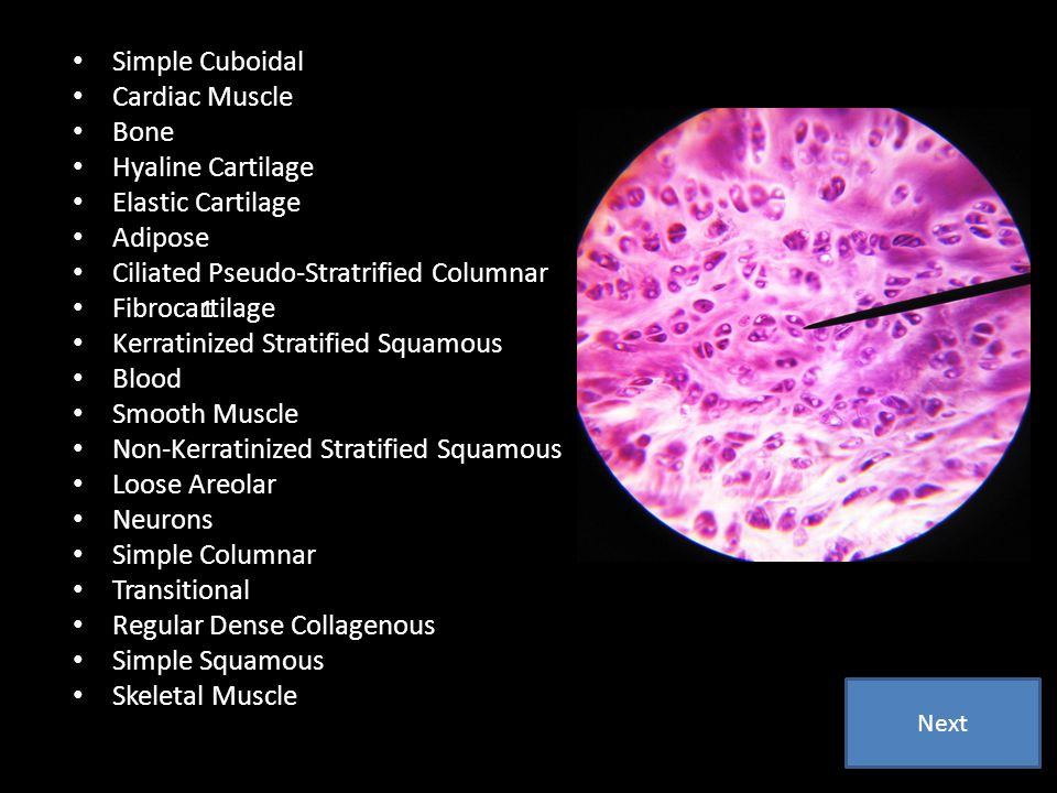 Simple Cuboidal Cardiac Muscle Bone Hyaline Cartilage Elastic Cartilage Adipose Ciliated Pseudo-Stratrified Columnar Fibrocartilage Kerratinized Strat