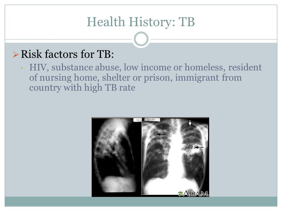Health History: TB Risk factors for TB: HIV, substance abuse, low income or homeless, resident of nursing home, shelter or prison, immigrant from coun