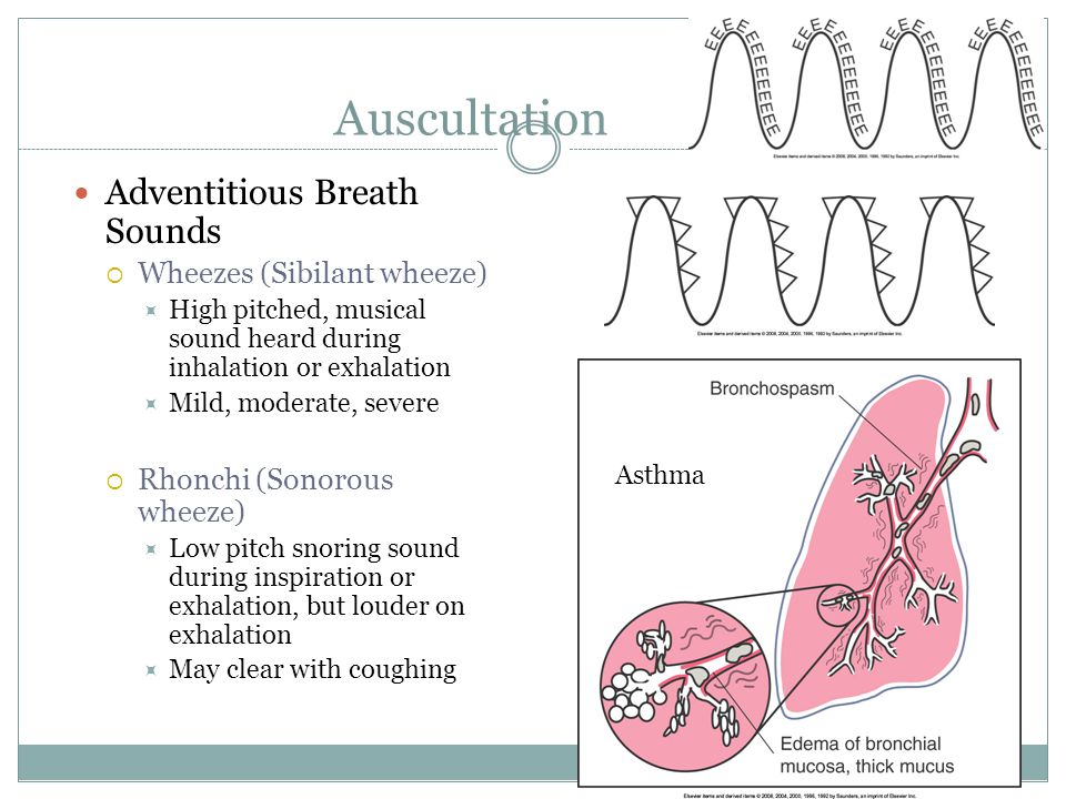 Auscultation Adventitious Breath Sounds Wheezes (Sibilant wheeze) High pitched, musical sound heard during inhalation or exhalation Mild, moderate, se