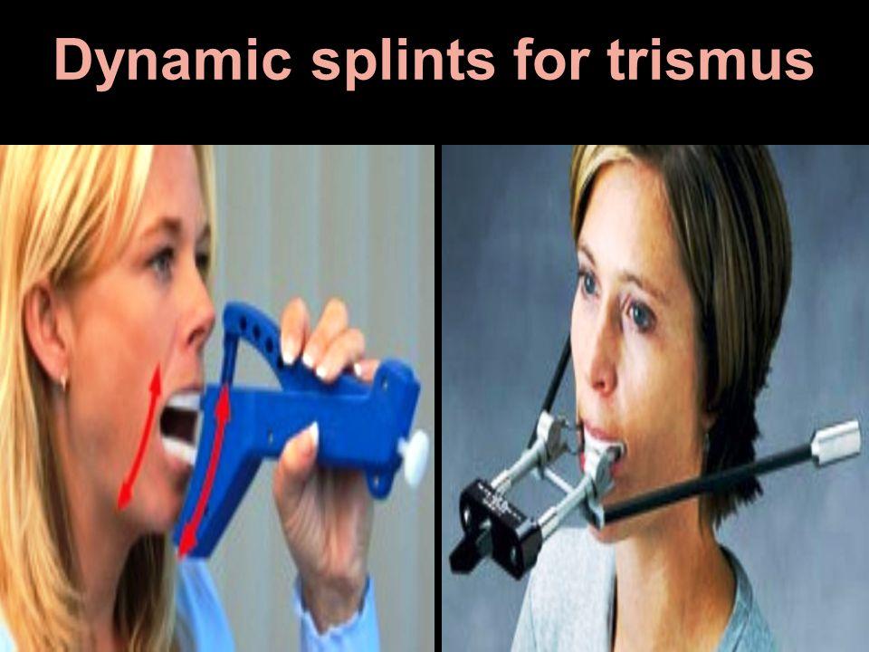 Dynamic splints for trismus