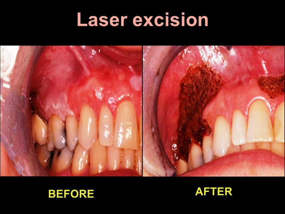 Laser excision BEFORE AFTER