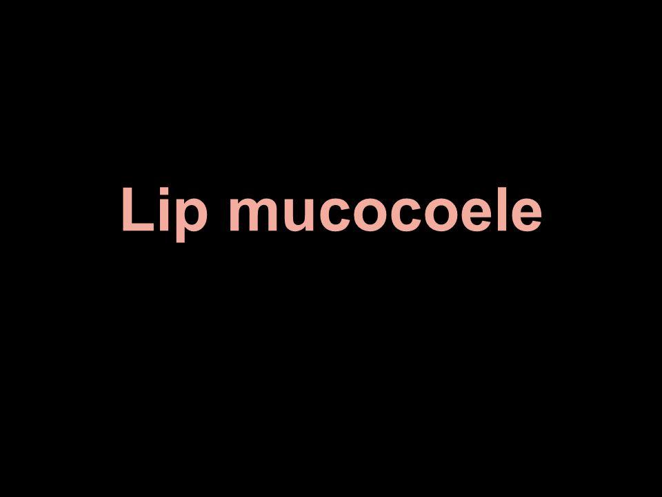Lip mucocoele