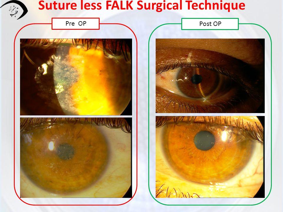 Suture less FALK Surgical Technique