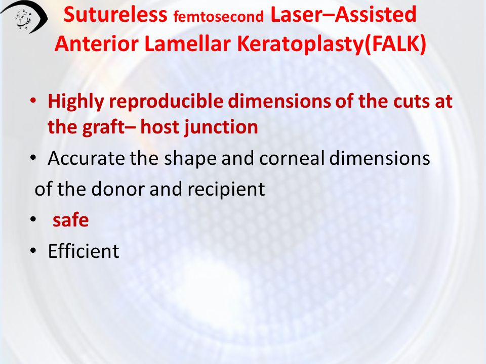 Recent procedure to minimize ALK difficulties The improvements in automated micro keratomes and artificial anterior chambers (ALTK) Femtosecond Laser–