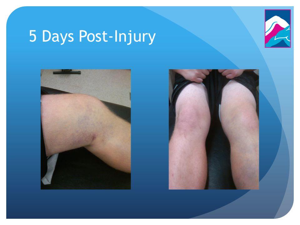 5 Days Post-Injury