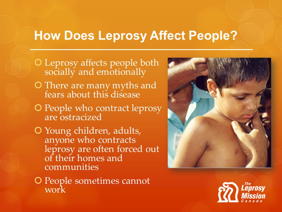 How Does Leprosy Affect People? Leprosy affects people both socially and emotionally There are many myths and fears about this disease People who cont