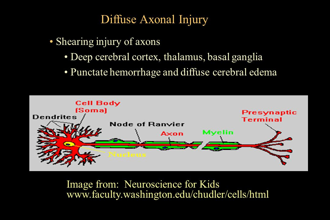Shearing injury of axons Deep cerebral cortex, thalamus, basal ganglia Punctate hemorrhage and diffuse cerebral edema Image from: Neuroscience for Kid