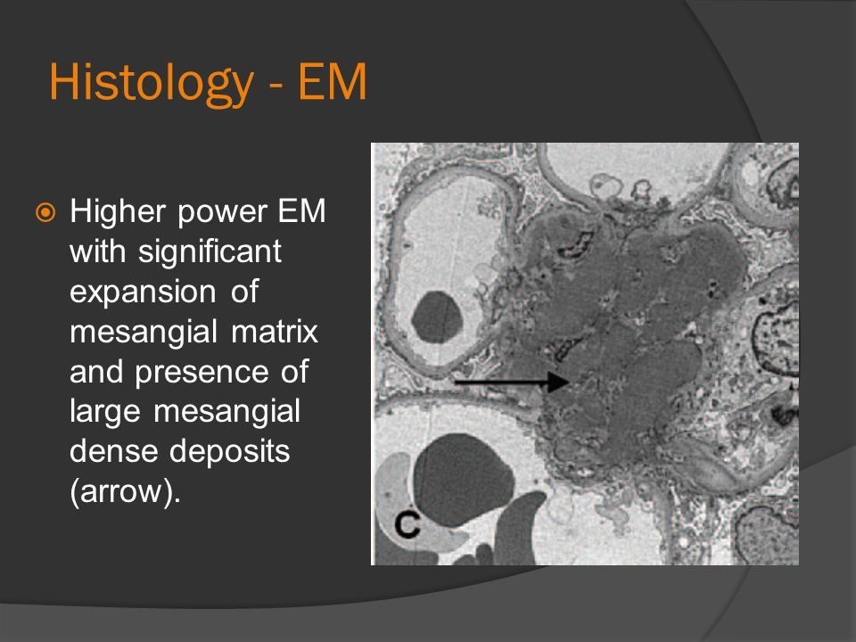 Histology - EM Higher power EM with significant expansion of mesangial matrix and presence of large mesangial dense deposits (arrow).