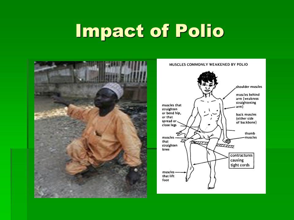 Impact of Polio