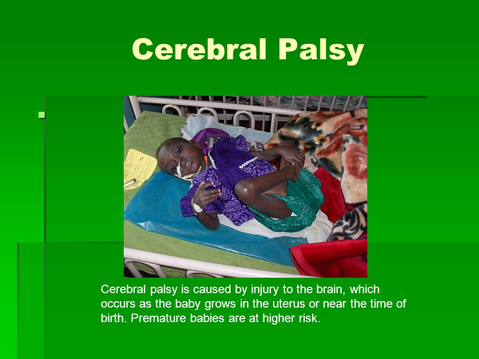 Cerebral Palsy Cerebral palsy is caused by injury to the brain, which occurs as the baby grows in the uterus or near the time of birth.